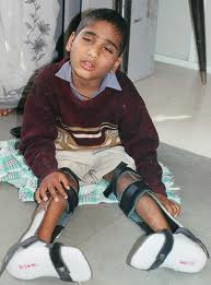 A young boy, legs paralysed, wearing calipers